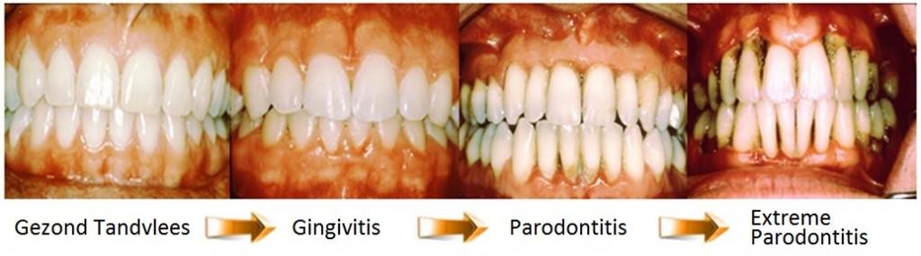 ontstoken tandvlees, gingivtitis en parodontitis