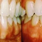 verkleuring ontstoken tandvlees