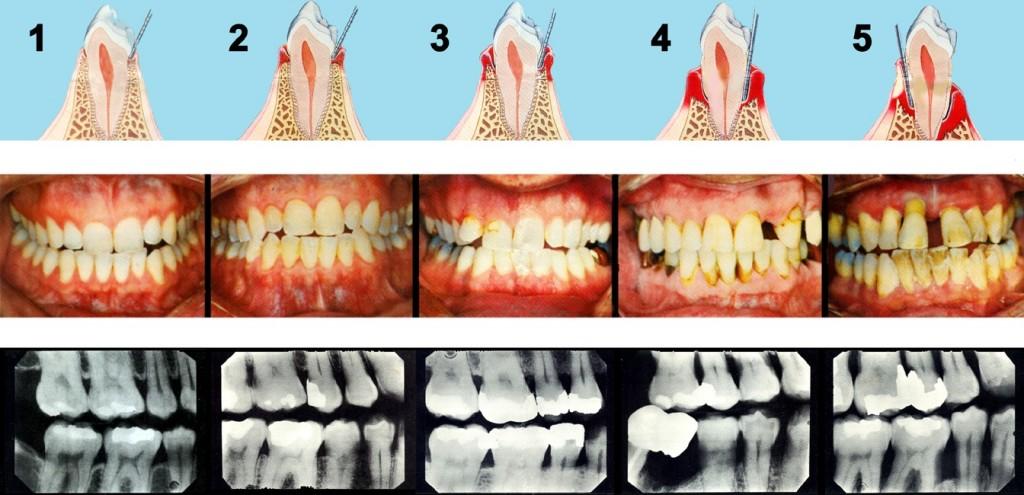 Verschillende stadiums van parodontitis