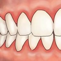 tandvleesontsteking