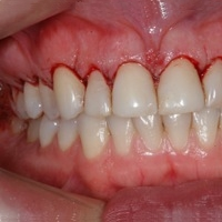 bloedend tandvlees
