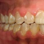 oorzaak parodontitis