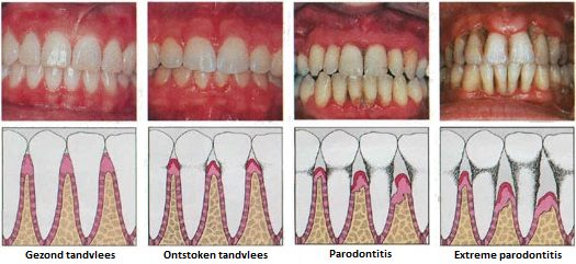 Verloop van gingivitis naar parodontitis