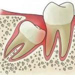 Ontstoken tandvlees door ingeklemd gebitselement